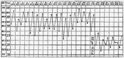 A temperature chart of syphilitic cases. Source:  Wunderlich 1871: 407 .   ...